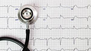 Divisi Aritmia, Pacu Jantung, dan Elektrofisiologi