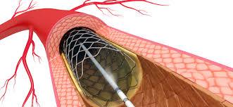 Divisi Diagnostik Invasif dan Intervensi non Bedah